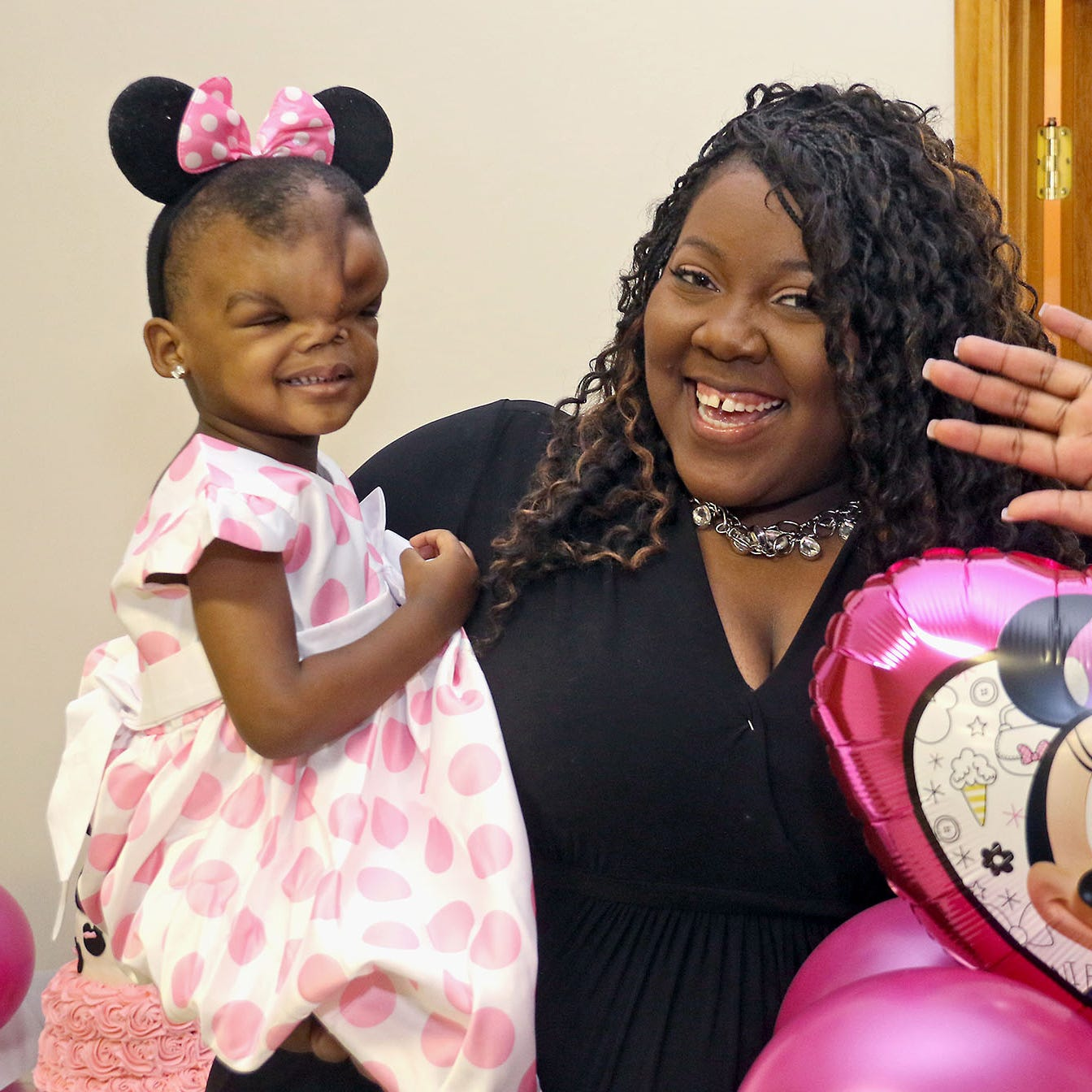 Mississippi toddler thrives after life-changing surgery