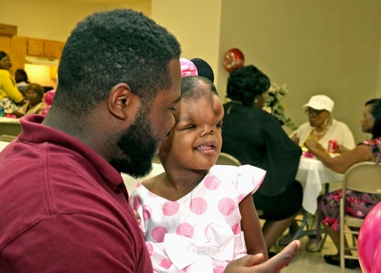 Quantrel Alford holds his daughter Zoey Grace Alford during her welcome home party after her three-week stay in Boston, Ma. for her surgery to correct the birth defect and disfigurement of her skull.  The party was held in Pheba, Miss. Sunday afternoon Aug. 19, 2018. (Jim Lytle/Special to the Clarion Ledger)