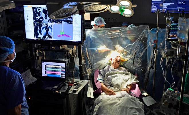 Larry Clift, 74, of Chattanooga, who has Parkinson's disease, undergoes deep brain simulation surgery Aug. 14, 2018, at Vanderbilt University Medical Center. Clift was awake during the procedure, which involves implanting an electrode in his brain.