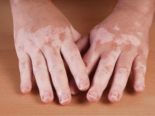 Hammerling Got White Spots On Your Skin It Could Be Vitiligo