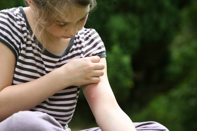 Mosquito bites are one of the downsides of warmer weather. The city of Lancaster and village of Carroll have mosquito fogging planned this week.