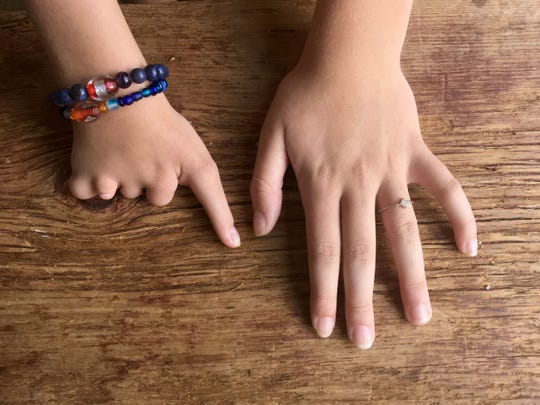 Ryan Stapelman, 11, places her hands on a table in Royal Oak on Aug. 21, 2018. Ryan has monodactyly, which means she has one finger on her right hand.