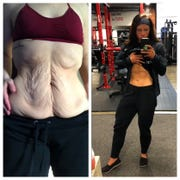 Rachael Heffner's before and after video showing her loose skin after weight loss and before skin removal surgery, and her after video showing her new abs receivd 50k like on her Instagram account.