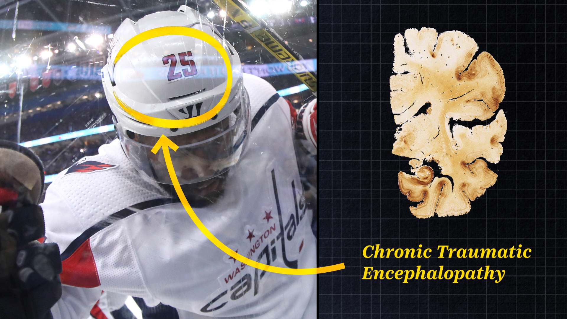 What is CTE? The degenerative brain disease that's been found in NFL players, explained