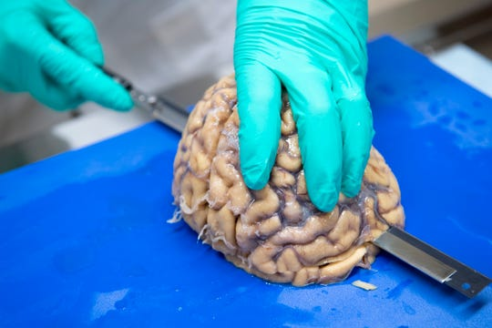 Ann C. McKee slices the brain into segments about a quarter-inch thick as part of in-depth, time consuming research on the organ. McKee hopes the work will unlock answers to CTE.