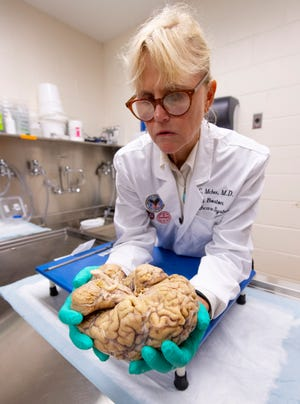 Ann C. McKee, chief of neuropathology at the VA Boston Healthcare System, which houses the world's largest brain bank devoted to CTE research, examines a brain earlier this month.