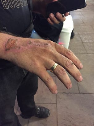 Jorge Morena shows his wounded hand in Oklahoma City