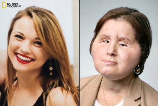 Left: Stubblefield family photo - Katie Stubblefield, 17, 8 months before attempting suicide.