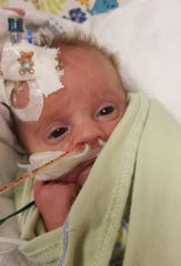 Staunton's Raven Diana Ivy Pritt at the NICU unit in University of Virginia Health System University Hospital after receiving her first treatment at for Generalized Arterial Calcification of Infancy (GACI), a rare genetic disease that affects 1 in 391,000 newborns. Raven's family is awaiting approval to transfer her to Children's Hospital of Philadelphia where she can receive specialized care.