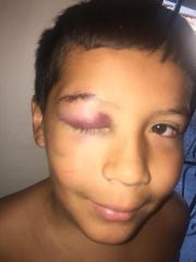 Aiden Vasquez, 10, is stitched up and in better shape a day after what his mom calls a bullying incident at school on Monday, Aug. 27, 2018.