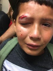 Aiden Vasquez, 10, is in tears after what his mom calls a bullying incident at school on Monday, Aug. 27, 2018.