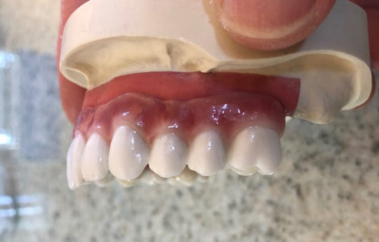 Dr. Steven Brock said his practice offers new tooth replacement options and smile enhancement with dental implants.