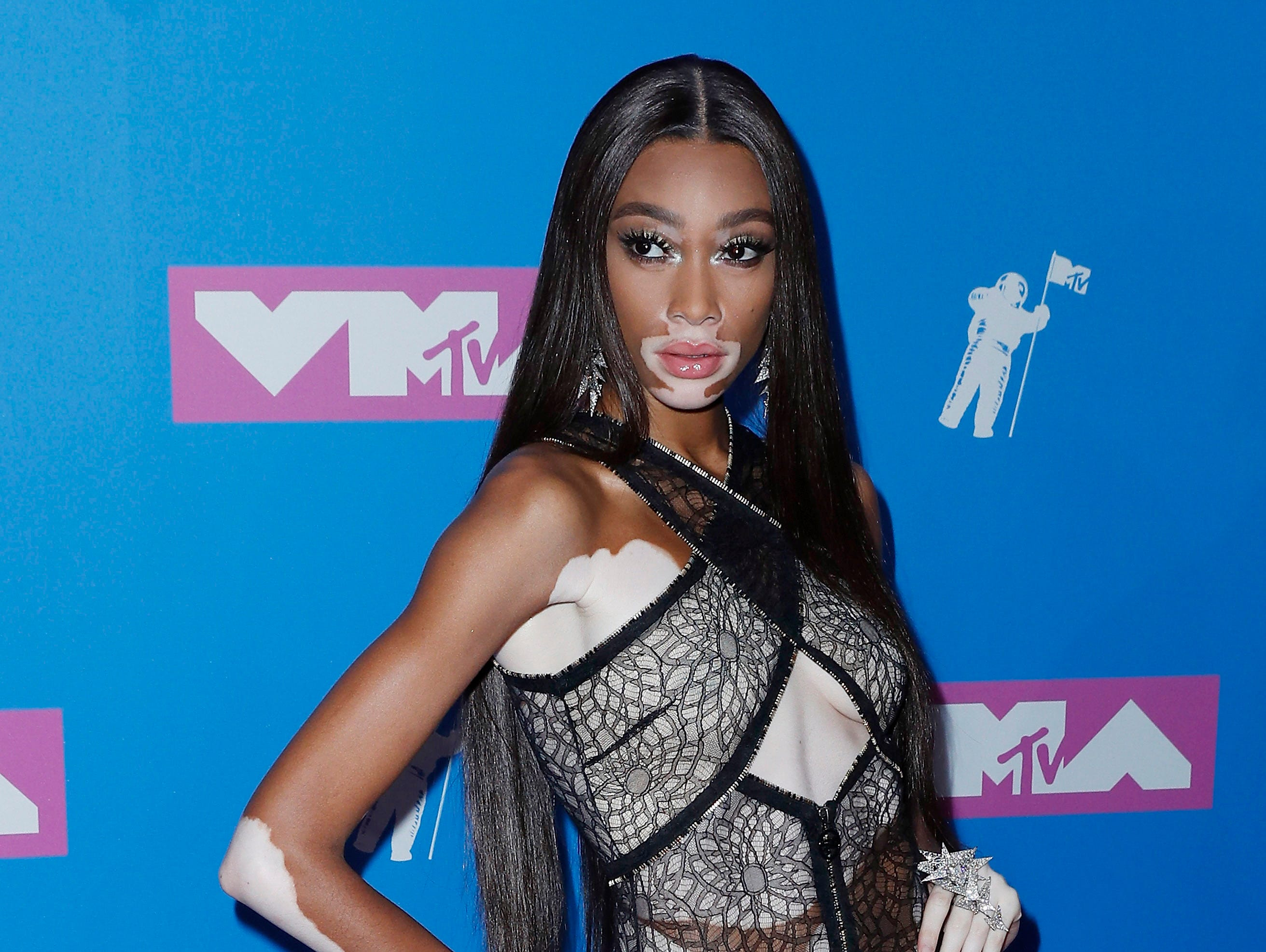 Model Winnie Harlow posed in a black lacey (and see-through) number at the MTV Video Music Awards.