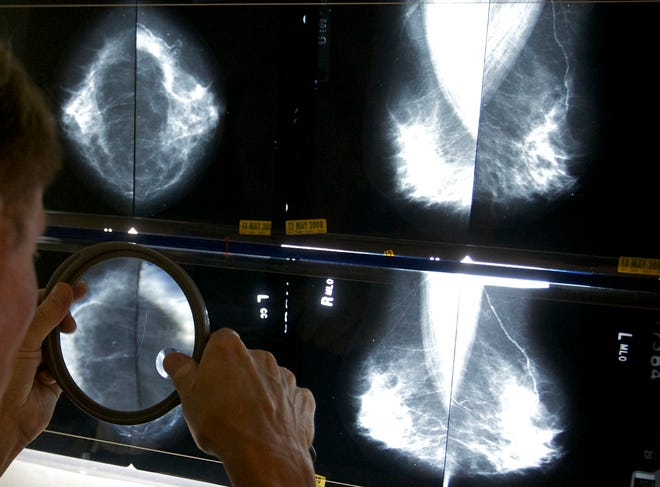 A radiologist in Los Angeles uses a magnifying glass to check mammograms for breast cancer.