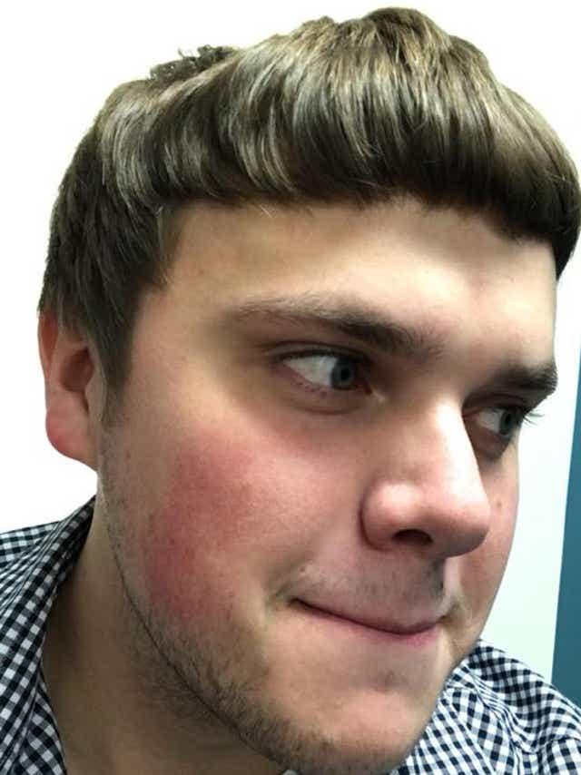 Bad Haircut His Photos Went Viral