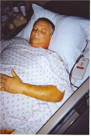 Jerry Fifer of Pensacola was hit by a drunk driver in 2000 and still suffers health issues as a result of the crash.