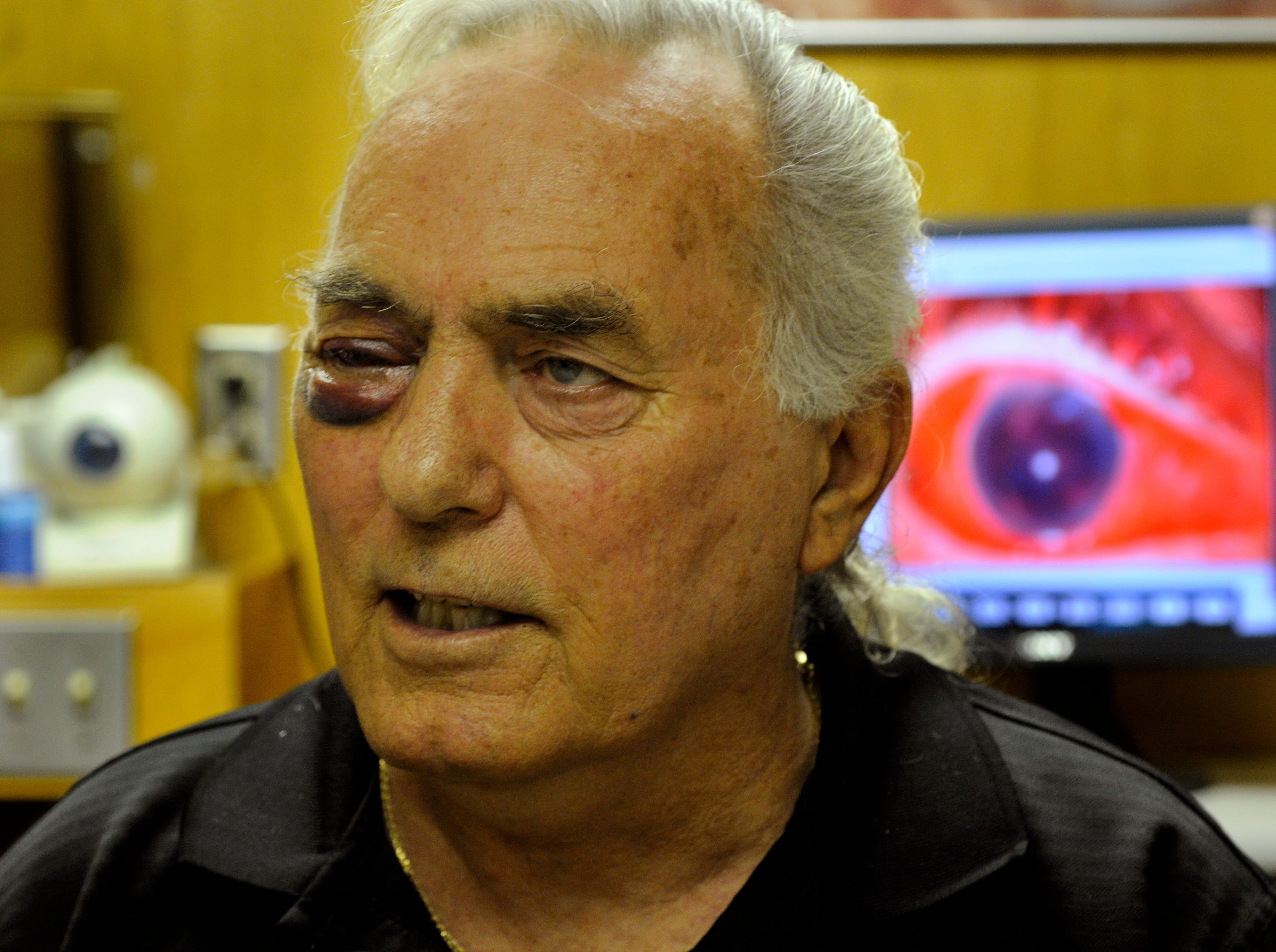 Church shooting victim John T. Worth has his wounded eye examined Wednesday at UT Professional Building. Worth, one of the victims at Tennessee Valley Unitarian Universalist Church, had a shotgun pellet strike his right eye. Dr. David Harris, Jr., told Worth that it was very unlikely he would regain use of the eye.