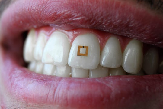 A miniaturized sensor mounted on a tooth can tell what a person eats, drinks or smokes and transmit the information to a mobile device.