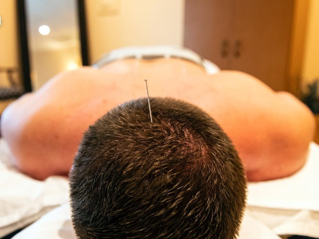 An acupuncture needle inserted into the head of YDR reporter John Buffone. August 29, 2018.