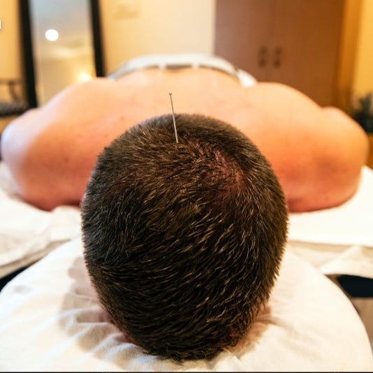 Acupuncture_Buffone