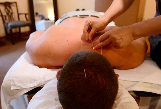 Hong Zhang, an acupuncturist at Acupuncture of York, puts an acupuncture needle in the back of John Buffone on Wednesday, Aug. 29, 2018.