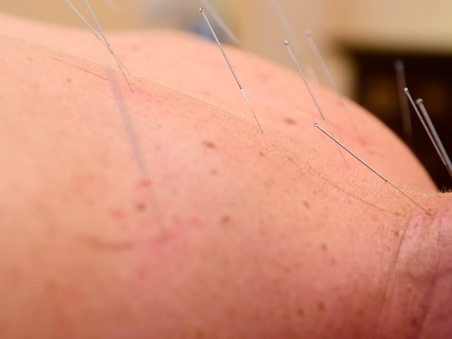 Acupuncture needles stick out of reporter John Buffone's back while trying acupuncture at Acupuncture of York, Wednesday, Aug. 29, 2018.