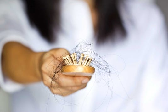 Woman Losing Hair On Hairbrush In Hand Soft Focus