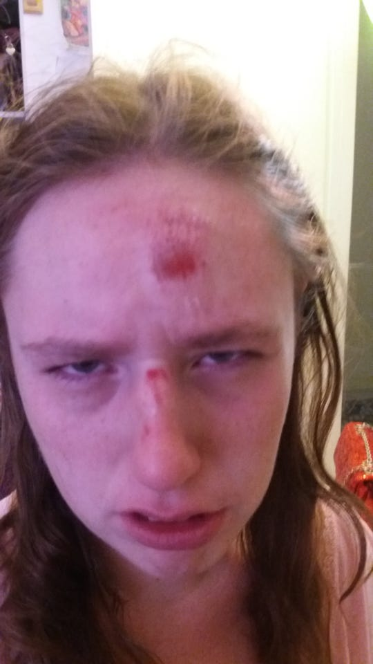 Michelle Chartrand was injured following an encounter with Riverside Sheriff's deputies.