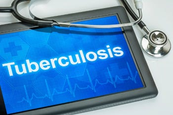 The Warren County Health District is warning that a Franklin City School District student may have tuberculosis.