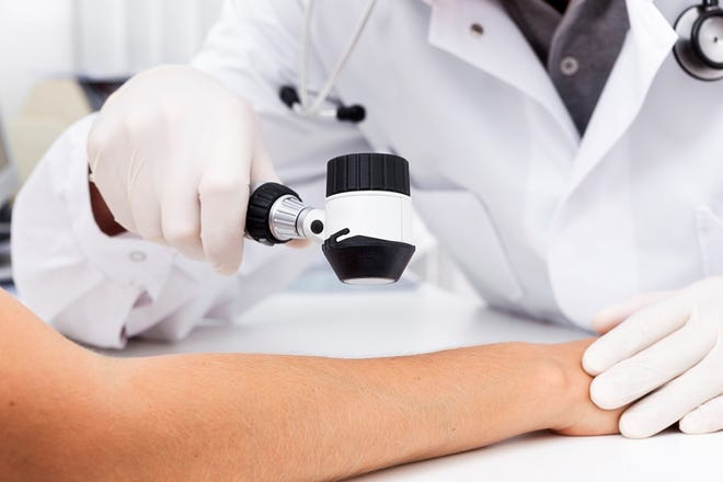Skin cancer screenings can detect skin cancer and precancerous growths early, when they are easiest to treat.