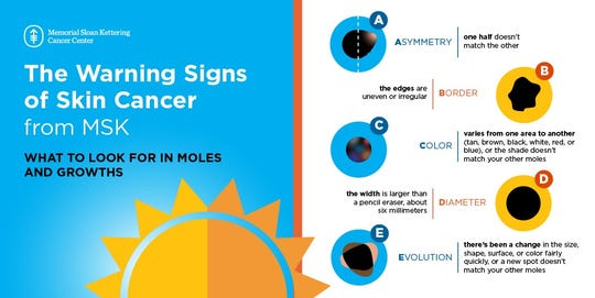 Doctors recommend following the ABCDEs of melanoma as a guide to identify suspicious moles or spots.
