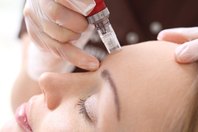 A beautician applies a skin therapy using microneedling.