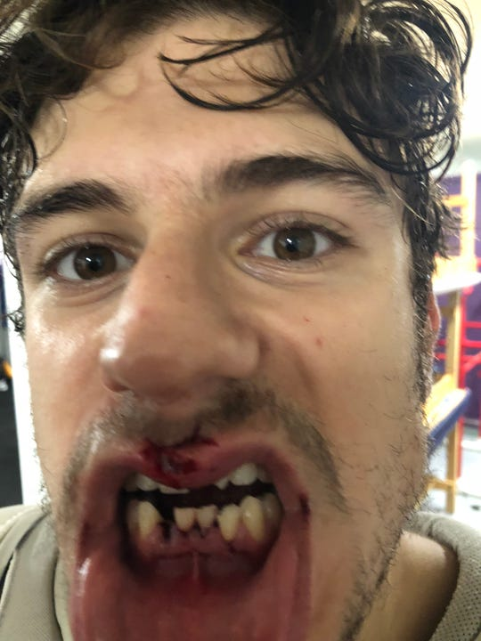 Shreveport Mudbugs forward Jay Feiwell lost a tooth, saw others rearranged and had fiberglass from a hockey stick stuck in his mouth following a cross check during Thursday's opener vs. Corpus Christi.