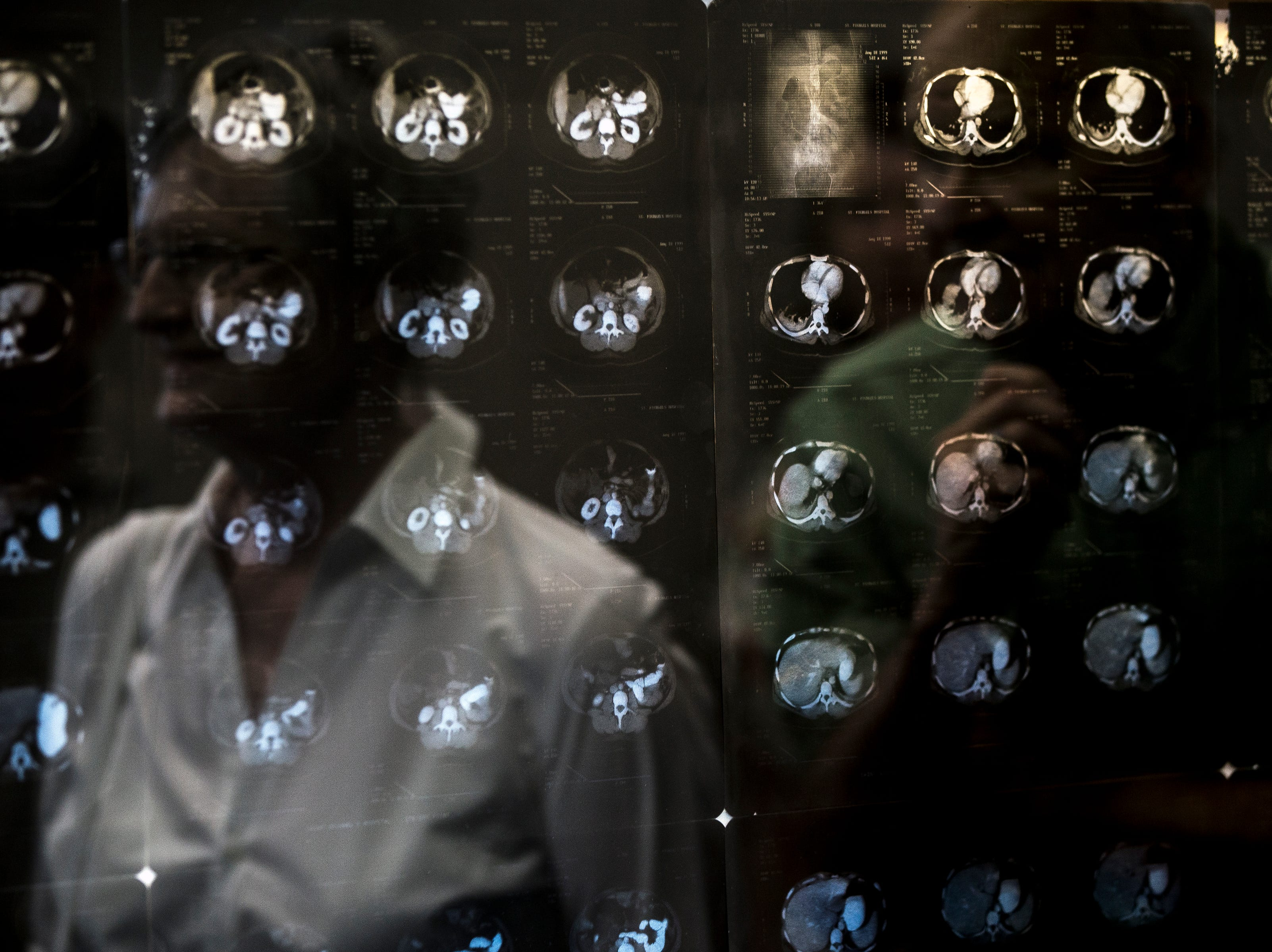 Scans of brains are displayed in the hallway of the Chemistry Biology Building at the University of Wisconsin-Stevens Point in Stevens Point, Wis., Sept. 14, 2018.