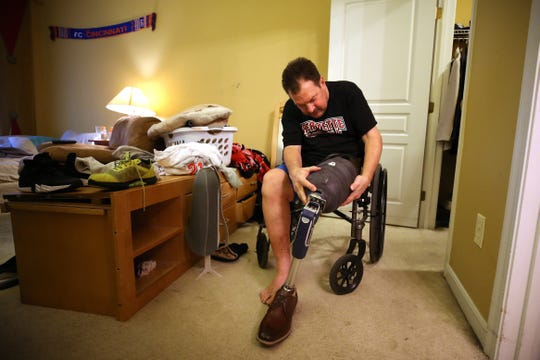Hamilton County Commissioner Todd Portune demonstrates how he attaches his prosthetic leg to his left leg, Friday, Aug. 31, 2018, at his home in Green Township, Ohio. Portune had his left leg amputated on April 16, following complications with connective tissue sarcoma in the leg.
