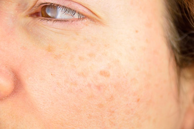 Actinic keratoses are rough, crusty patches on thehands, armsor face caused by sun damage