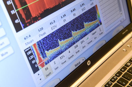 A screen shows a Doppler brain scan, similar to an ultrasound, for Kaimora Smith, 13, of Mauldin from Dr. Alan Anderson, part of a sickle cell disease test at the Cancer Institute of Greenville Health System in Greenville in September. Dr. Anderson is the medical director for the Comprehensive Sickle Cell Disease Program.
