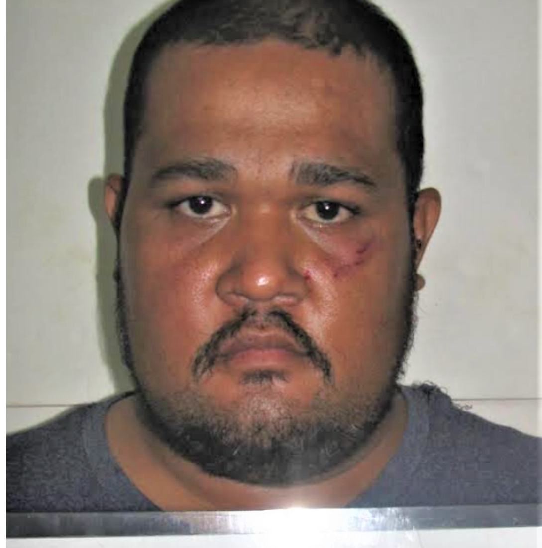 Mickenson Kitao accused of attacking woman with bat