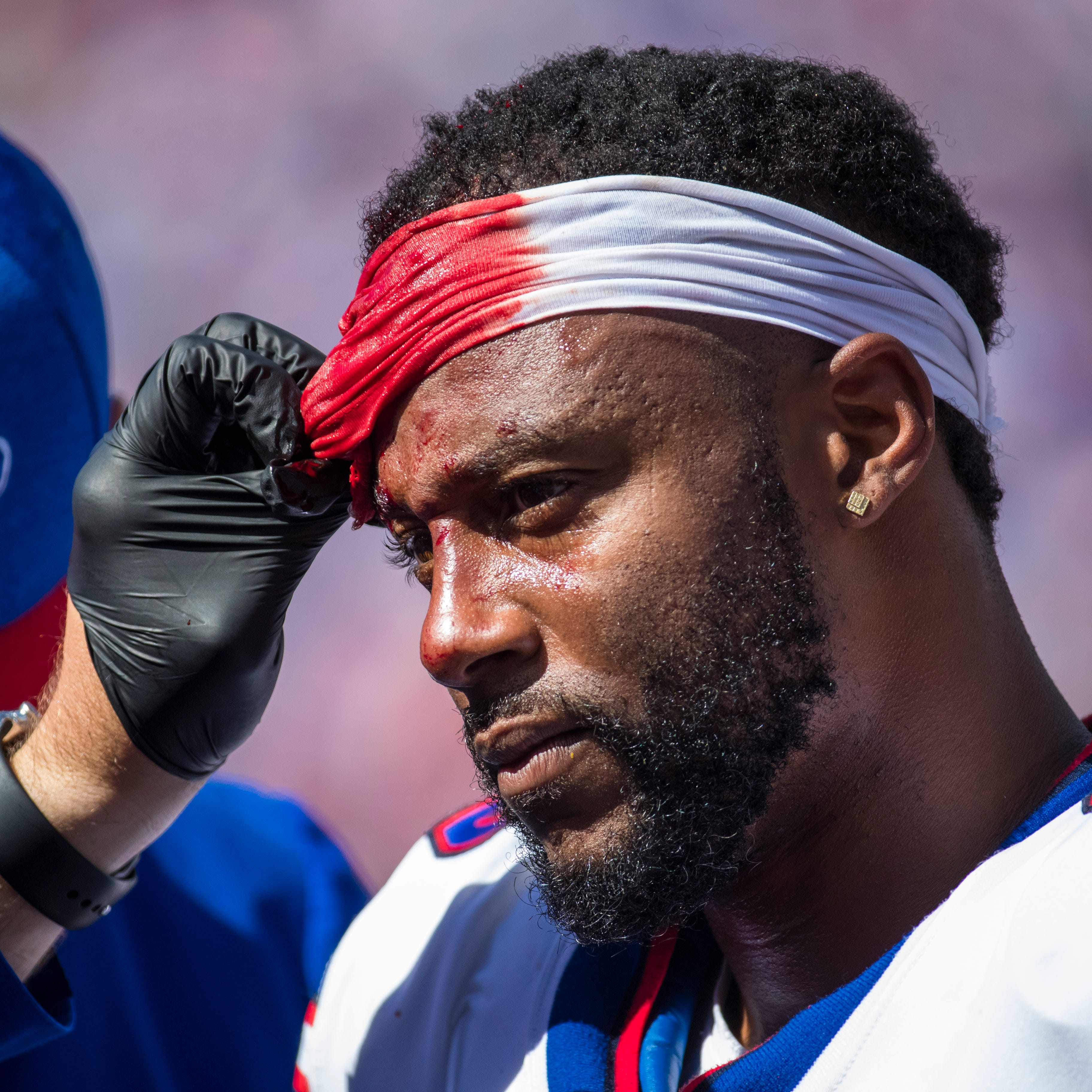 Bills running back Taiwan Jones took 10 stitches after bloody hit without helmet