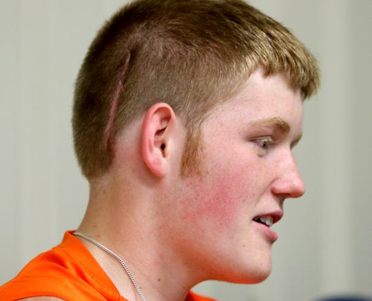 Petrolia's Wade Colley is interviewed about his brain surgery.