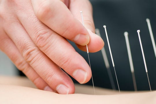 Acupuncture is a comprehensive treatment that includes dietary and lifestyle advice and wellness care that goes beyond just the delivery of a needling intervention.