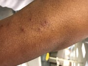 Bryan Davis, who stayed at the Union Gospel Mission on Monday, left with bed bug bites all over his body.