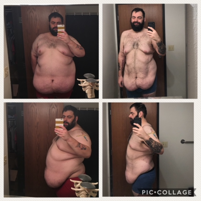 Aaron Firkus before and after losing 200 pounds. He's raising money for surgery to remove excess skin, which isn't covered by insurance.