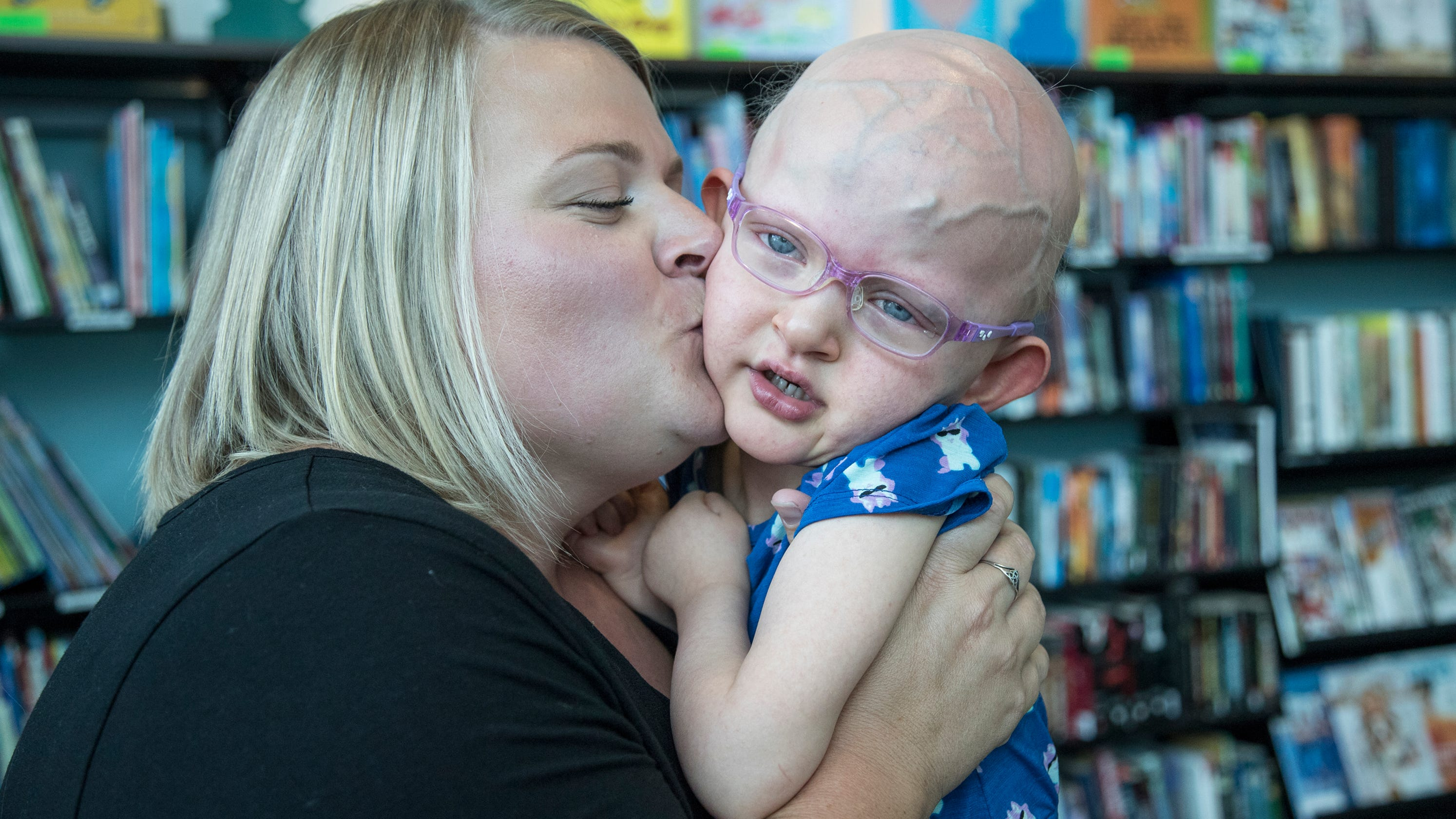 Mich  girl is 1st ever diagnosed with this genetic disorder