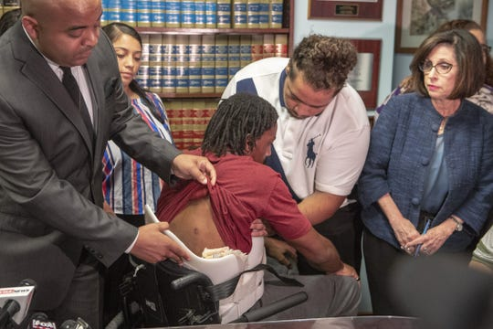 Jarrett Maupin shows Edward Brown's  bullet wounds at a press conference on Sept. 24, 2018. Brown is paralyzed from the chest down since being shot by a Phoenix police officer in August.
