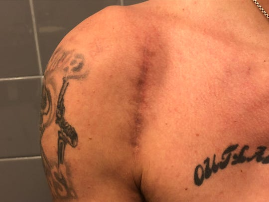 J.B. Mauney's right shoulder, which he says required a screw with 13 anchors after a recent injury.
