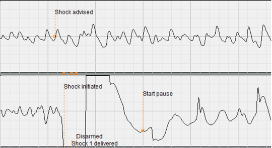 A chart from the automated external defibrillator used to restart the heart of a 52-year-old Wauwatosa man, shows in the upper graphic how his heart was not beating efficiently. The lower chart shows a determined heartbeat after a shock was administered.