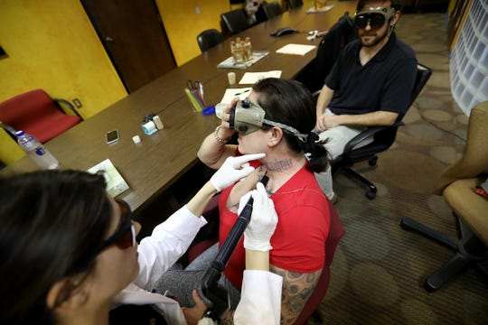 A felon, recently off probation, gets tattoos removed for free  by Dr. Amanda Nahhas, a Beaumont Hospital dermatology resident, with assistance from Zach Grushky, through the Freedom Ink program held at the Detroit Hispanic Development Corporation in Detroit on Thursday, Sept. 13, 2018.
