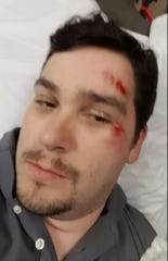 """On October 21, 2017, Neil Kelly posted this picture of himself on Facebook, detailing the crash and his injuries. """"I write this not to get sympathy,"""" he wrote, """"but as a warning. When you are turning right on a red light – or anywhere, for that matter – you must look all around you, even down. I got very lucky considering all possible outcomes. The next time it happens, I may not be so lucky. I don't want you to be that driver."""""""