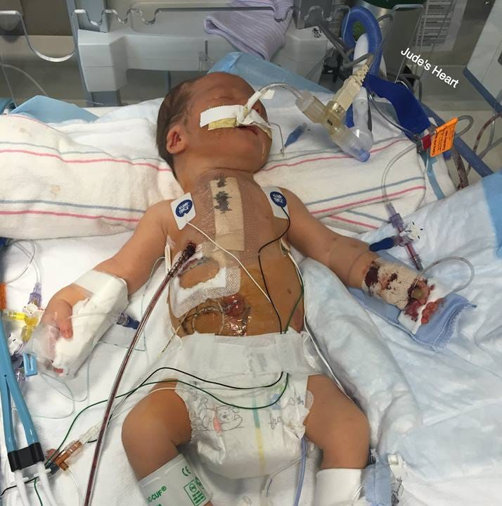 Jude Hayes 17 months ago after surgery for his heart defect.
